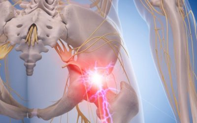 Take the Sting Out of Sciatica